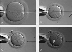 应对卵子质量问题的胚胎培养技术