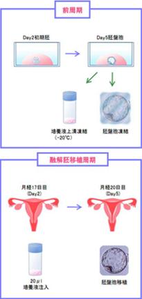 SEET(薄膜)移植法