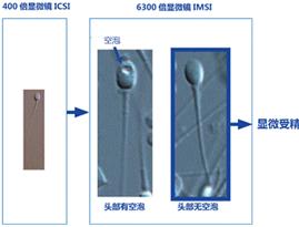 IMSI 6300倍显微镜辅助的显微受精