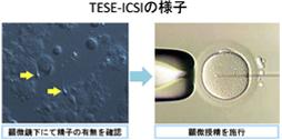 精巢取精的显微受精手术(TESE-ICSI