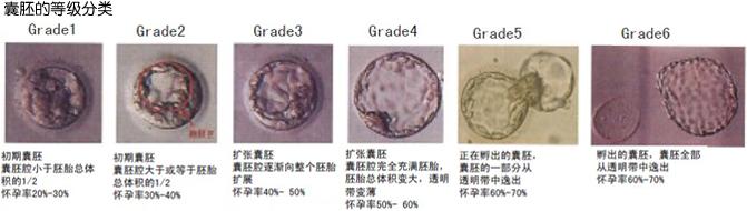囊胚的等级分类