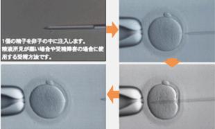 卵子前培养